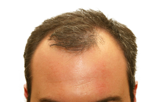 Hormone Blanacing for hair loss